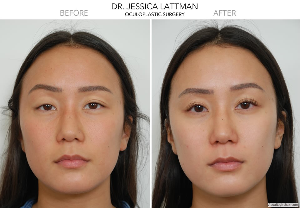 ptosis repair before and after gallery new york  nyc and