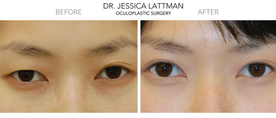 Asian Blepharoplasty New York