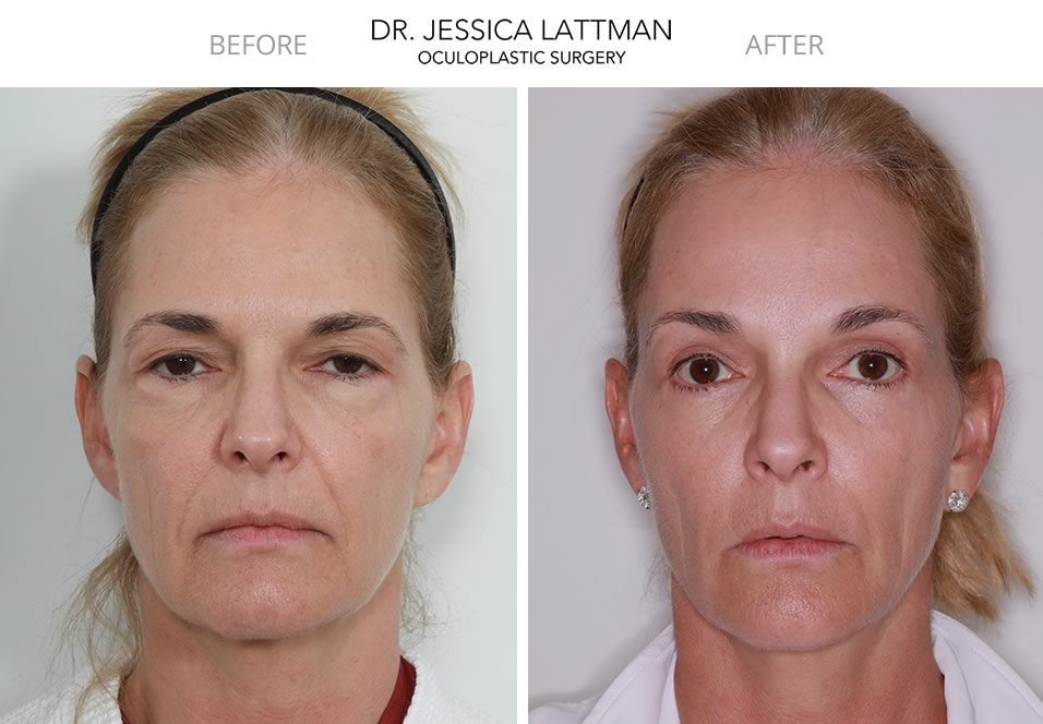 Blepharoplasty and Browlift