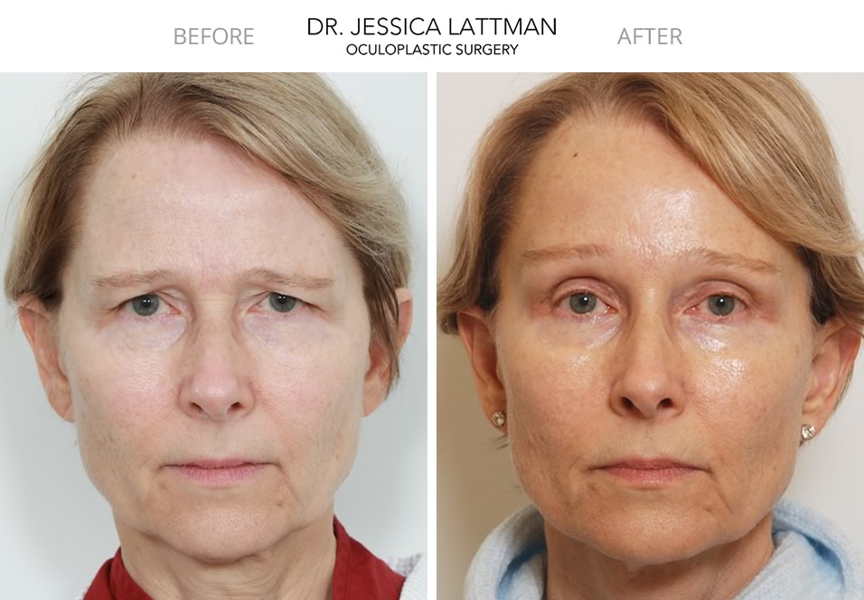 Female Blepharoplasty and Brow Lift by Dr. Lattman NYC