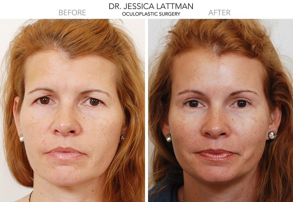 Female Brow Lift and  Blepharoplasty by Dr. Lattman NYC
