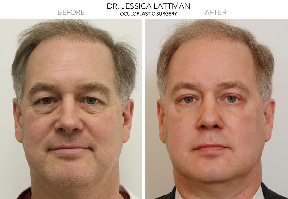 Male Lower Blepharoplasty by Dr. Lattman NYC