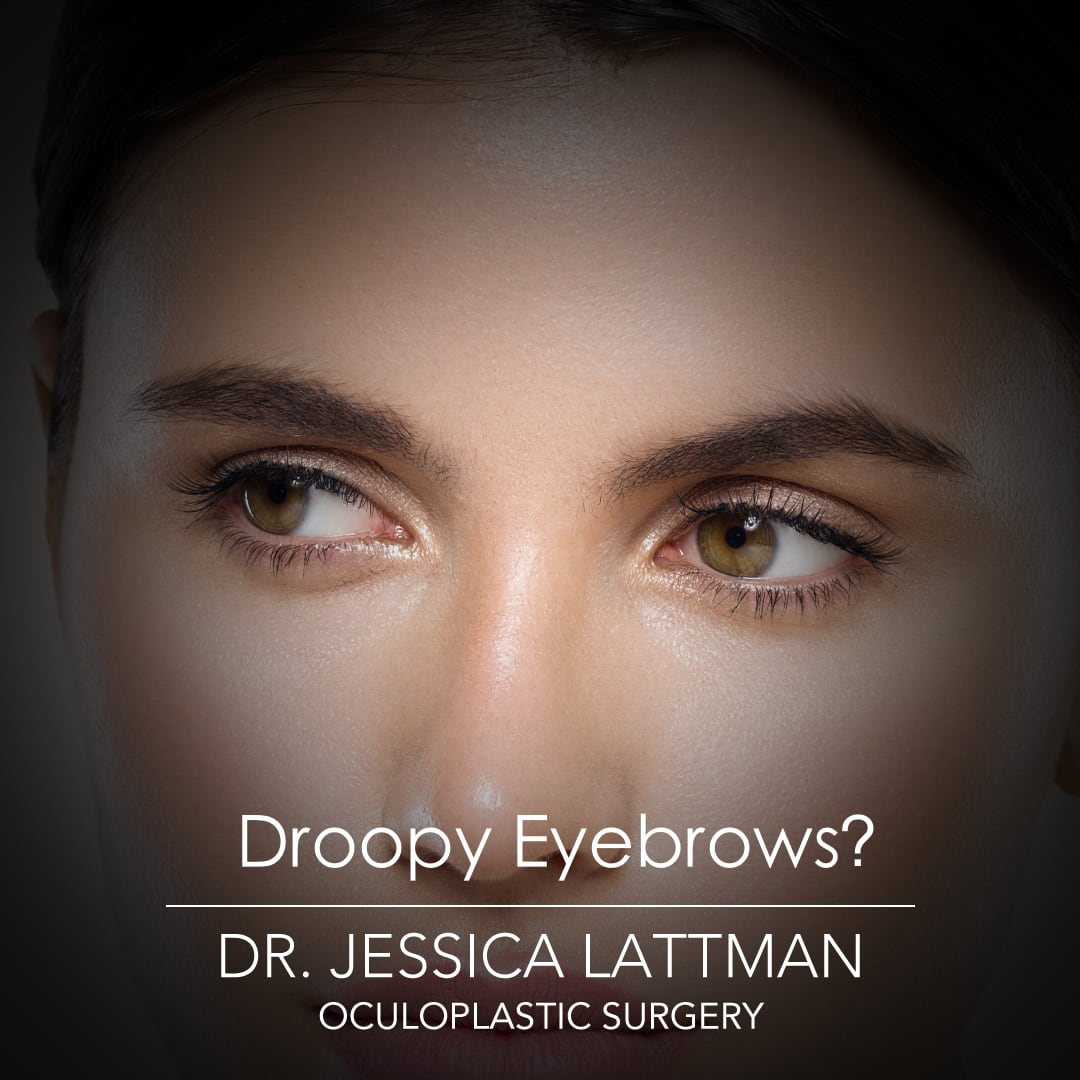 Droopy Eyebrows