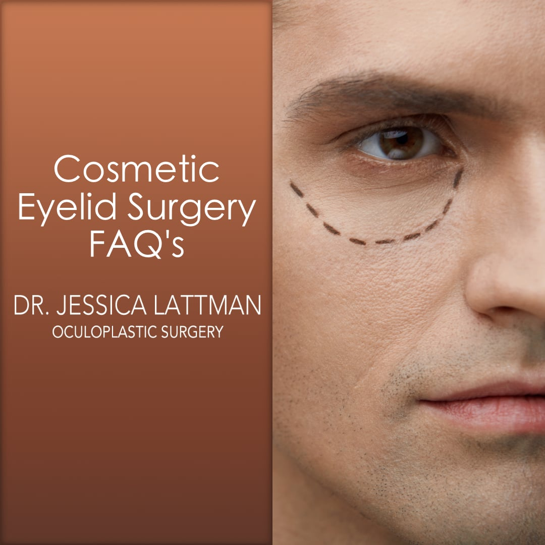 Cosmetic Eyelid Surgery FAQ's