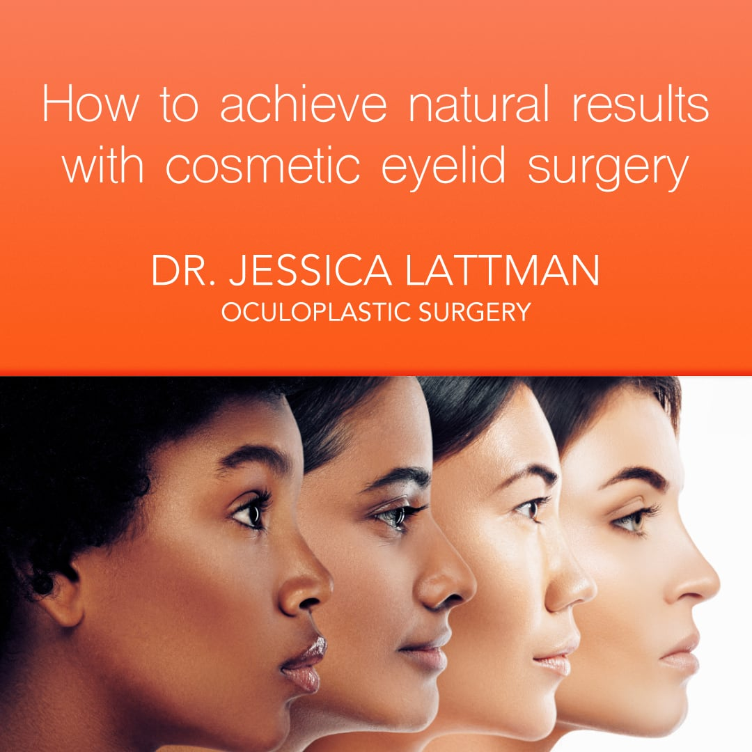 Cosmetic Eyelid Surgery Natural Results