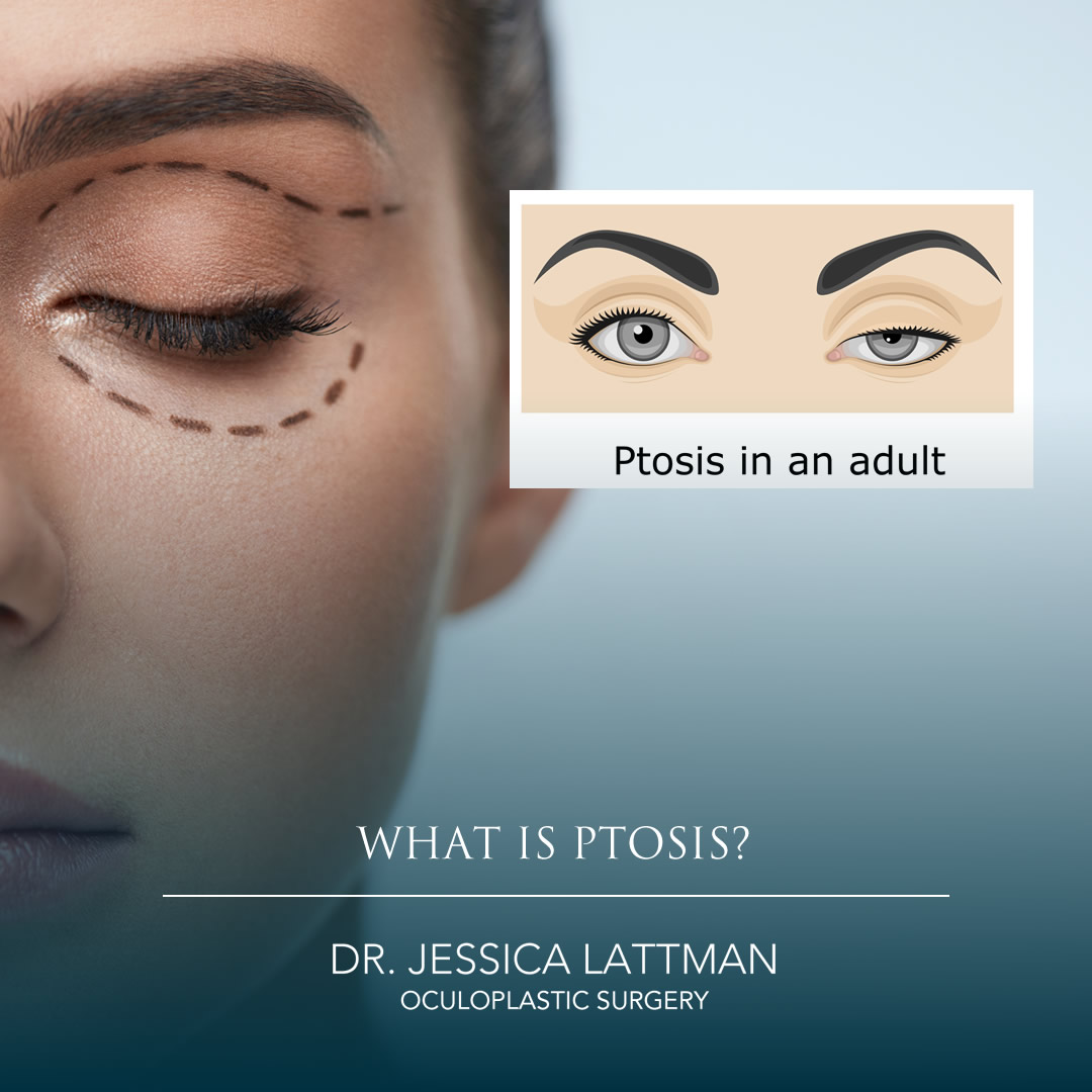 Ptosis droopy eyelid