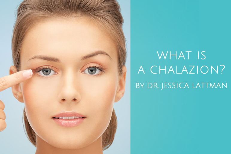 What is a Chalazion