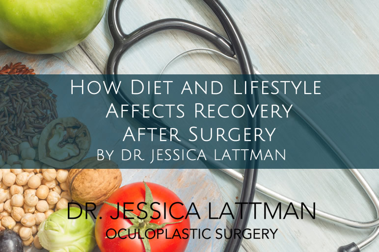Diet and Lifestyle Affects Recovery after Surgery