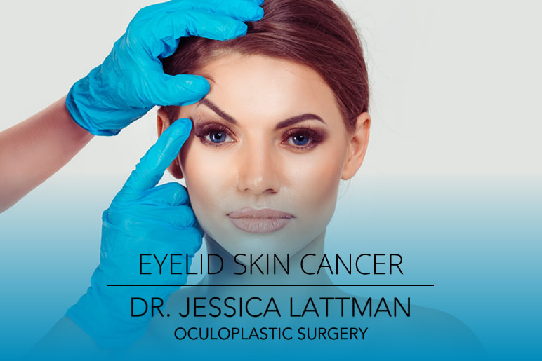 Eyelid Skin Cancer NYC