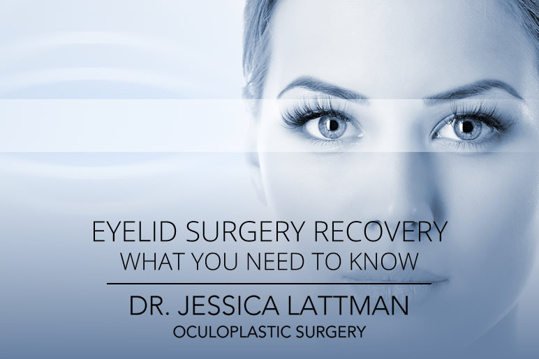 Eyelid Surgery Recovery - What you need to know