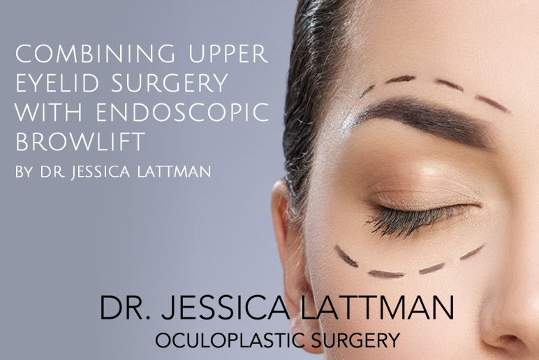 Combining Upper Eyelid Surgery with Endoscopic Browlift
