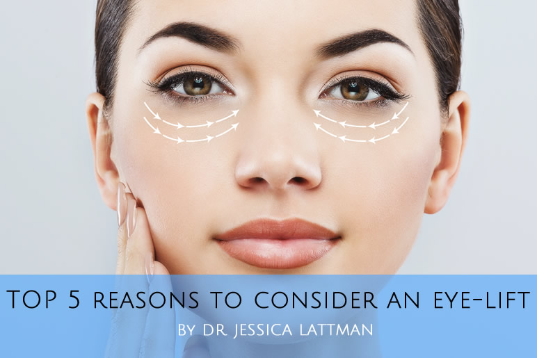 Top 5 Reasons to Consider an Eyelift