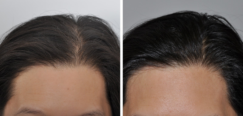 6 months post PRP for Hair