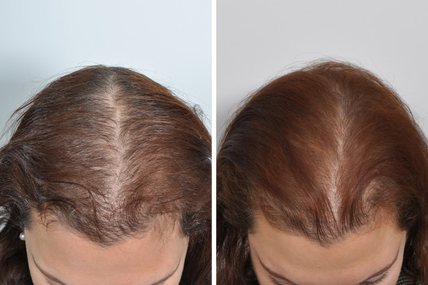 6 weeks after one treatment of PRP for hair loss
