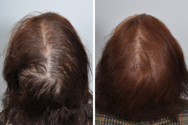 PRP for hair loss post chemotherapy