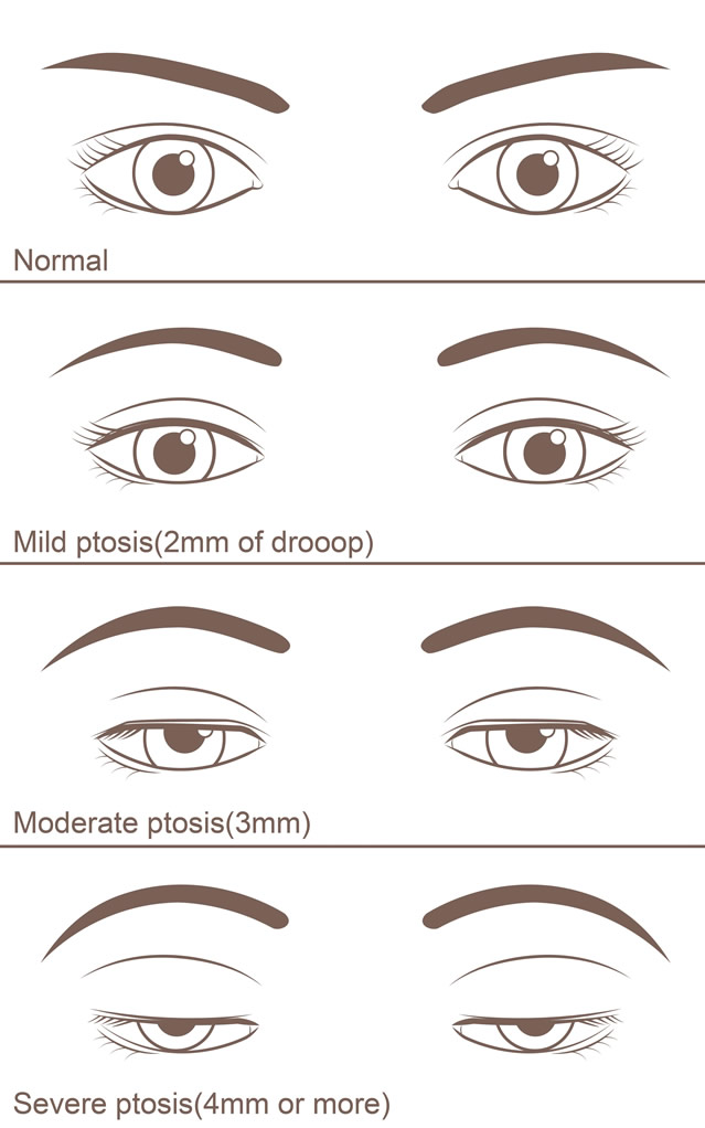 Stages of Ptosis