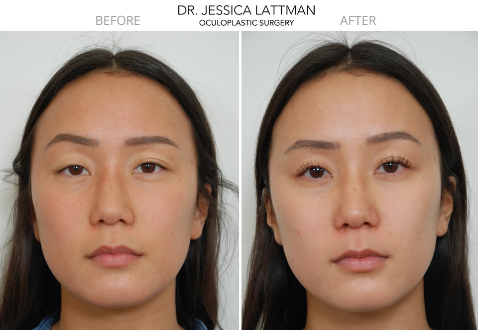 Eyelid Asymmetry Right Ptosis Repair NYC