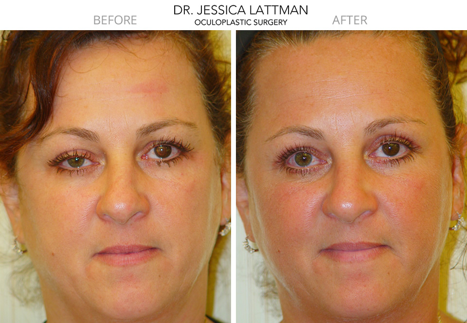 Ptosis Repair By Dr. Jessica Lattman